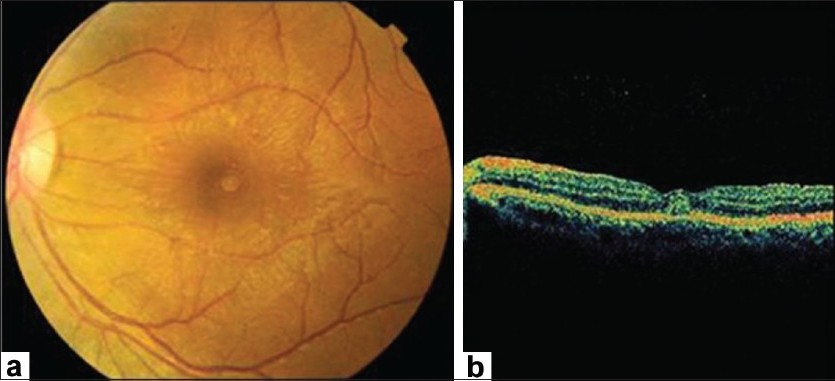 Figure 5: (a) Fundus photograph; (b) and optical coherence tomogram showing dengue foveolitis in the left eye. (c) before fundus. Fundus photograph showed an elevated orange spot at the fovea. The optical coherence tomogram demonstrated a focal thickening of the outer neurosensory retina-retinal pigment epithelial layer (Courtesy, Soon-Phaik Chee)