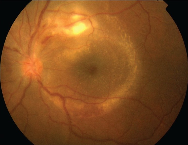 Figure 8: Color fundus photograph of the left eye of a patient with Mediterranean spotted fever shows a temporal juxtavascular white retinal lesion with associated serous retinal detachment and a macular star
