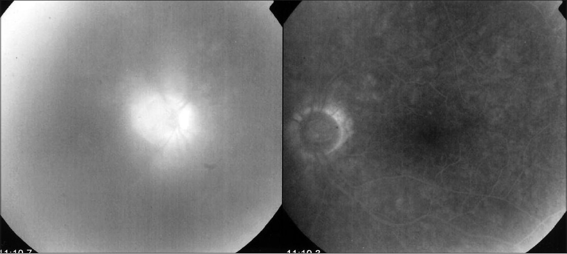 Figure 4: Disc hyperfluorescence. Disc staining in the affected right eye shown in the left side compared to the normal fellow eye. Also note the vitreous infiltration