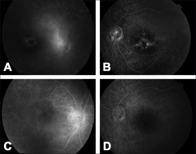 Adalimumab (Humira TM ) in ophthalmology: A review of the