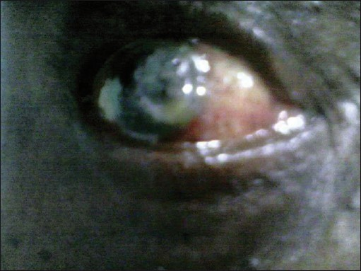 Figure 2: Eye with panophthalmitis secondary to traditional eye medication