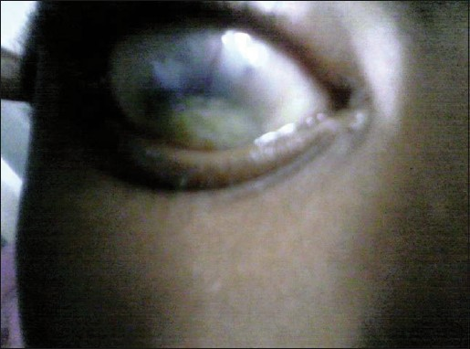 Figure 4: Eye with corneal opacity secondary to traditional eye medication