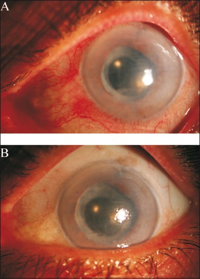 Figure 3 :Slit photograph of a subject with bullous keratopathy. A: before and B: 6 months after corneal cross linking. There were less injection and the patient was symptom free 6 months after the procedure
