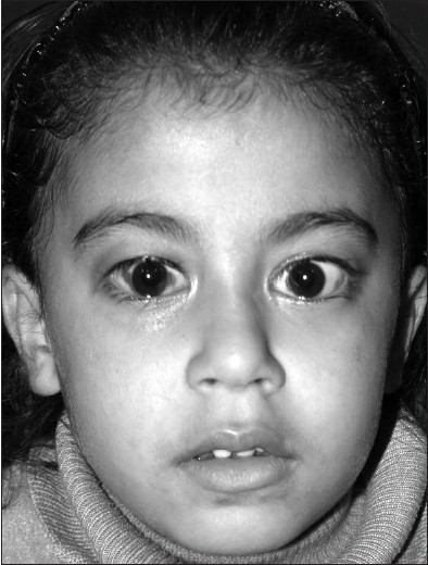 Figure 2: One week after inferior rectus recession. Note the orthophoric eyes and the residual eyelid retraction