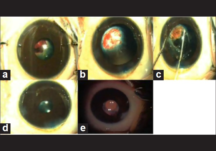 Figure 1: (a) Cataract with persistent hyperplastic primary vitreous; (b) Vascularized membrane after lens aspiration; (c) Fugo blade-assisted membranectomy; (d) Implantation of intraocular lens; (e) Clinical picture at 1 year follow-up