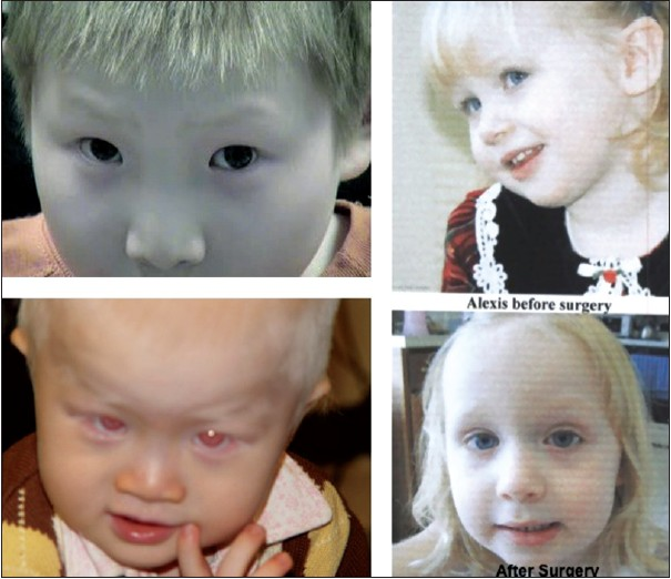 Albinism Particular Attention To The Ocular Motor System