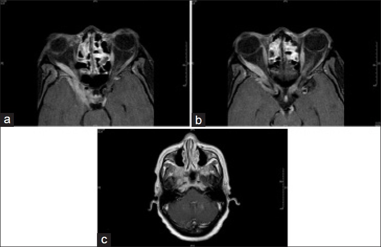 Figure 1: T-1 axial magnetic resonance imaging post gadolinium contrast at the level of the cavernous sinus (a) mid-midbrain (b) and foramen magnum (c) showed enhancement of the bilateral proximal optic nerves and the bilateral third nerves. There is also enlargement of the proximal optic nerves and the right lateral rectus muscle. Enhancement of the right cavernous sinus is seen extending anteriorly and inferiorly into the pterygopalatine fossa, the orbital apex and the infratemporal fossa