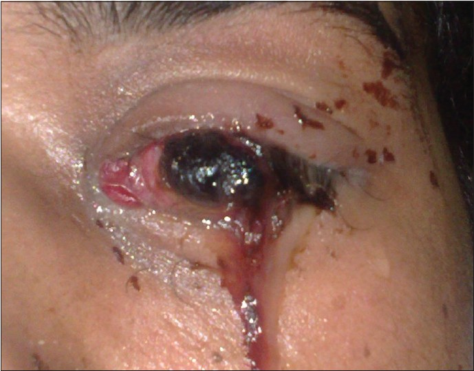 An unusual ocular emergency in severe dengue Nagaraj KB ...