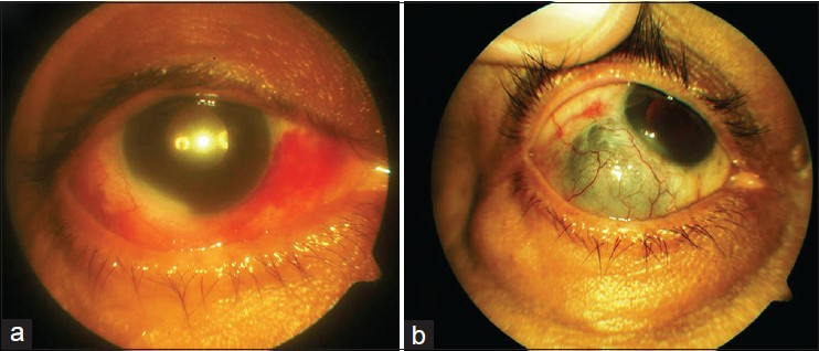 Figure 1: (a) Localized episcleral congestion and hypopyon in case 1, (b) Scleral thinning and necrosis at the site of sclerotomy in case 1