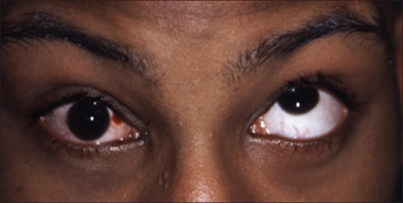 Figure 8: Limitation of elevation, right eye, following orbital trauma (Reproduced with permission from Lueder GT. Pediatric Practice Ophthalmology. New York: McGraw-Hill Professional; 2011:163)