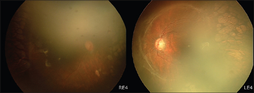 Figure 4: 8 months after lens sparing vitrectomy showing an attached retina