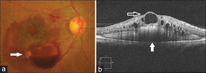 Figure 2 A Color Fundus After Bevacizumab Injection Showing Ruptured Retinal Arterial Macroaneurysms