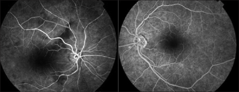 Figure 2: Fluorescein angiography indicated that the arm-to-retina circulation time was 33 s, the areas of retinal vascular nonperfusion in the right macula corresponded to the cotton wool spots