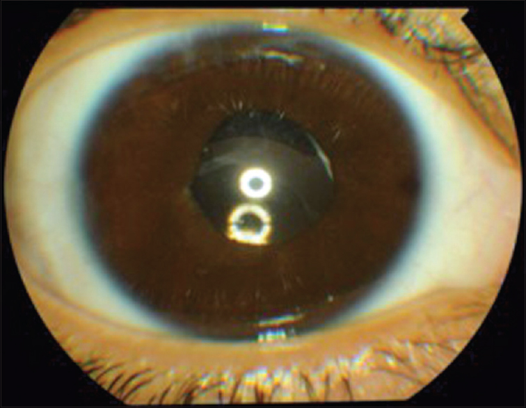 Figure 3: The postoperative clinical photo of the right eye 2 years later showing complete resolution of the blood corneal staining and a stable intraocular lens
