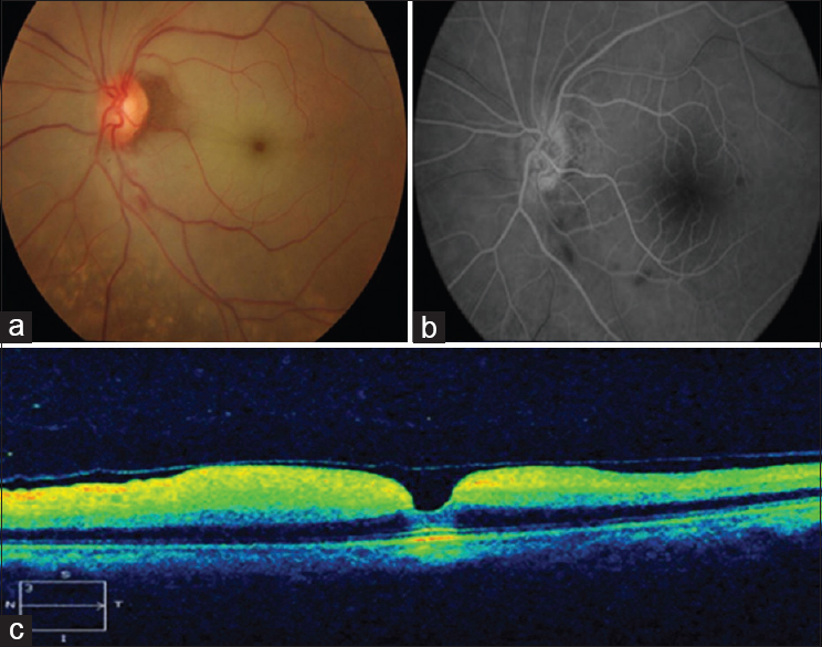 Figure 1: Central retinal artery occlusion. (a) Fundus picture showing retinal whitening in the posterior pole with cherry red spot suggestive of central retinal artery occlusion, (b) fundus fluorescein angiography taken on the next day showing normal arm retinal time with delayed arterio-venous time suggestive of reperfusion, (c) optical coherence tomography shows hyperreflective inner retinal layers with thickening and an intact outer retina suggestive of central retinal artery occlusion. Inner retinal layers are edematous and fused due to an acute ischemic event