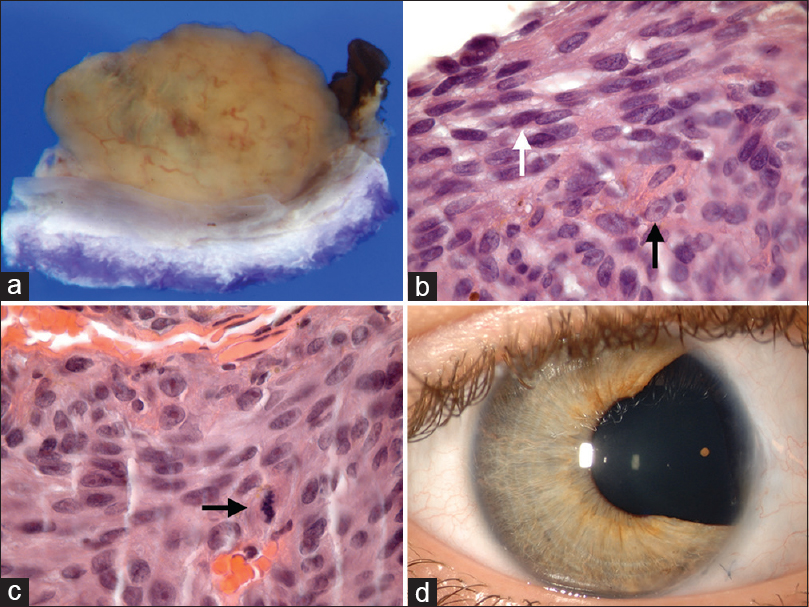 Figure 2: Surgical and histopathological results. (a) Gross evaluation of the iridectomy specimen demonstrated a solid vascular amelanotic iris mass with (b) histopathology features of neoplasm composed of a syncytial arrangement of cells with cigar-shaped nuclei, finely dispersed chromatin, linear nuclear folds, and inconspicuous nucleoli (spindle A melanoma cells, white arrow) intermixed with cells with ovoid nuclei and prominent nucleoli (spindle B melanoma cells, black arrow) (H and E; ×100). Cells with morphology intermediate between spindle B and epithelioid melanoma cells are present (white arrow). (c) A mitotic figure is noted (black arrow) (H and E; ×100). (d) Appearance of iris after 14 years showing sector iridectomy and no evidence of tumor
