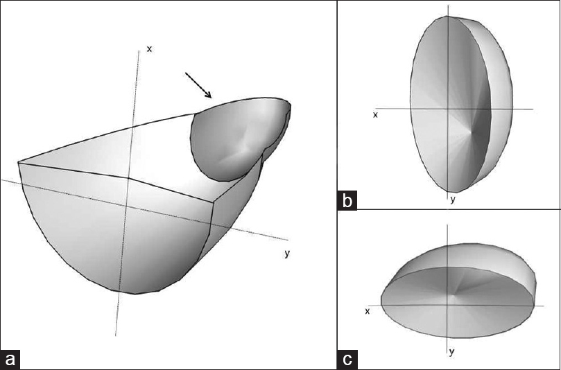 Figure 1: Model of a myopic eye. Illustrations are captioned with (x) for horizontal plane and (y) for vertical plane. (a) Axial cross-sectional image of an elongated myopic eye with posterior staphyloma (arrow). (b) Cross-sectional image of staphyloma with a smaller base curvature in the horizontal section. Structures lying in the staphyloma slope can be defined easier by vertical sections while horizontal section might be suffering from mirror artefacts. (c) Cross-sectional image of staphyloma with small base curvature in the vertical section; in this case vertical sections are expected to present mirror artefact