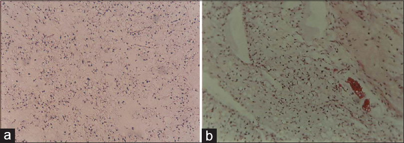 Figure 3: (a and b) Hematoxylin and eosin staining revealed myxoid background