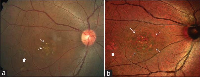 Figure 1: (a) Color fundus photograph of the right eye shows retinal pigment epithelium alterations at the center of the macula along with subretinal yellowish deposits (white arrow) suggestive of vitellieruptive stage of Best's vitelliform macular dystrophy. The area of retinal pigment epithelium mottling temporal to fovea (white solid arrow) is barely seen. (b) Composite multicolor image of the right eye shows a larger area of retinal pigment epithelium mottling (white arrows) compared to color fundus photograph. It shows retinal pigment epithelium mottling temporal to fovea (white solid arrow) better than color fundus photograph