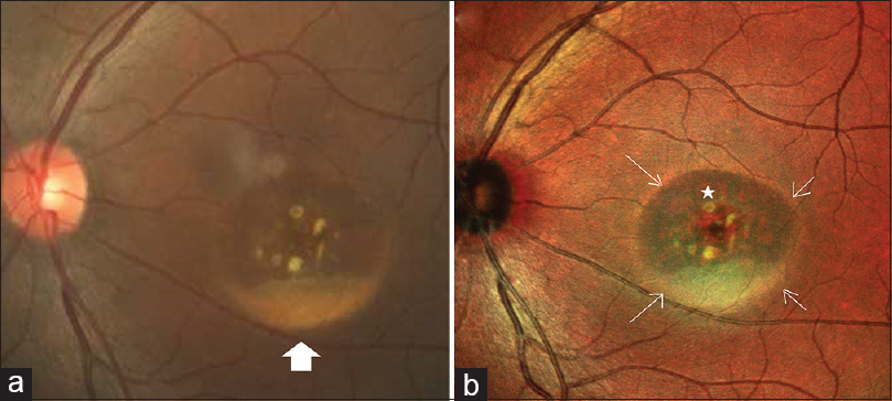 Figure 2: (a) Color fundus photograph of the left eye shows area of retinal elevation at the center of the macula with yellowish subretinal deposit at the dependent part (solid white arrow) suggestive of lipofuscin. (b) Composite multicolor image of the left eye gives blue-green hue to the elevated retina and delineates the margin of elevation sharply (white arrows). Subretinal yellowish lipofuscin deposits (solid star) are brighter than composite fundus photograph