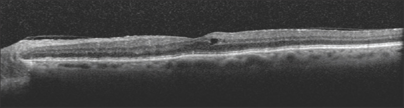 Figure 2: Posterior segment optical coherence tomography showing irregular macular thickening and mild cystoid macular edema associated with epiretinal membrane