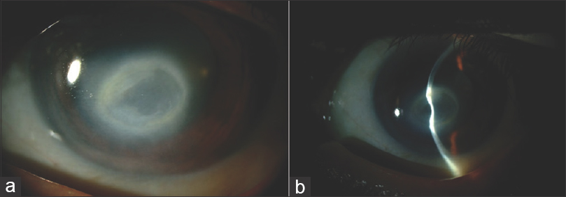 Figure 1: (a and b) Slit-lamp photos showing central corneal thinning surrounded by a scar
